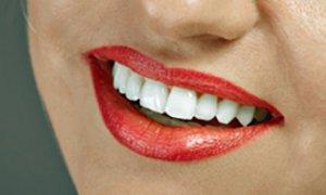 home-teeth-whitening
